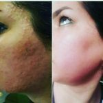 رفع مشکلات تضمینی پوست
